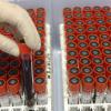 В Европе за минувшие сутки зарегистрирован 661 новый случай заражения человека гриппом А (H1N1)