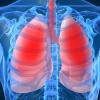 Вирус А/H1N1/ глубоко инфицирует клетки лёгких, установили учёные