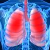 Вирус свиного гриппа обнаружен у 13 белорусов, умерших от пневмонии