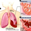 Доктор Коровкин: Эти пневмонии практически не поддаются лечению