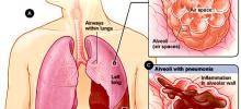 Ученые выяснили, почему некоторые люди тяжело переносят грипп H1N1